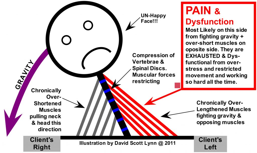 Postural Imbalances Analyzed by Structural Bodywork & Medical Massage Therapy Near Asheville NC
